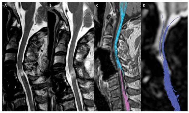 환자의 MRI와 DTI검사결과다. 줄기세포치료제 투여하기 전(A와C)에 비해 투여 후 6개월이 경과한 후(B와 D)에는 끊어진 척수신경이 재생되었음을 확인할 수 있다.
