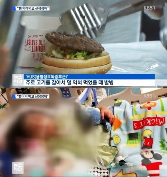 맥도날드 햄버거병 / KBS 방송 캡처