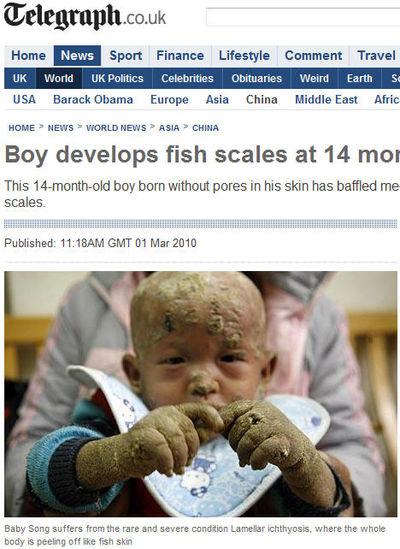 '물고기 비늘' 피부 가진 생후 14개월 아기 화제