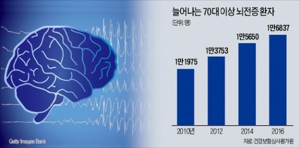 뇌전증, 약물치료로 70%가량은 회복…예상못한 '발작'…사회적 편견 없어져야