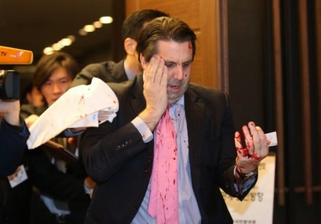 마크 리퍼트 대사를 향한 테러를 큰 충격을 안겨줬다. 사진=연합뉴스