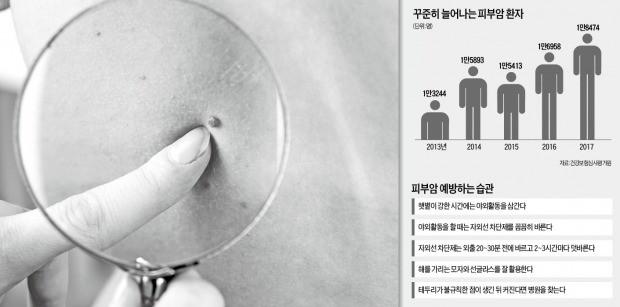 여름휴가 다녀온 뒤 몸에 생긴 '검은 점'… 혹시 피부암?