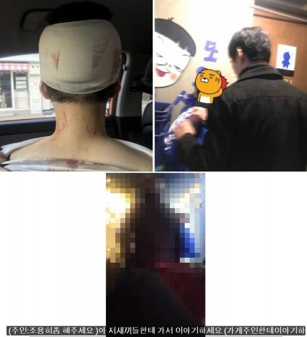 이수역 주점 폭행 사건, 여성 측이 공개한 사진과 유튜브 채널 하야를 통해 공개된 사건 당시 영상 /사진=연합뉴스, 유튜브 캡쳐