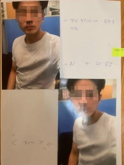 버닝썬 폭행 사건 이후 김상교 씨가 공개한 피해 사진/사진=김상교 씨 SNS
