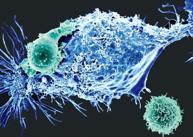 생물공학적으로 조작된 T세포(CAR-T)들이 넓게 퍼진 암세포를 공격하는 모습.  /메모리얼 슬론 케터링 암센터 제공