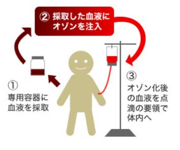 '혈액 클렌징이 암·노화예방?'…일본서 효과 논란