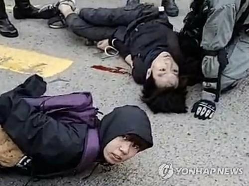 홍콩시위 참가자 2명, 경찰이 쏜 실탄 맞아…1명 위독(종합2보)