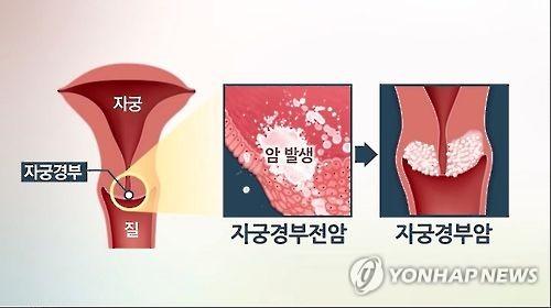 """제넥신 """"자궁경부전암 치료백신, 수술없이 60% 이상 효과"""""""