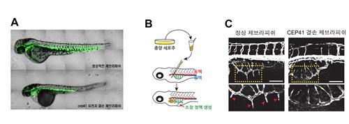 세포 내 섬모가 혈관 만드는 과정 규명…항암제 개발 기여