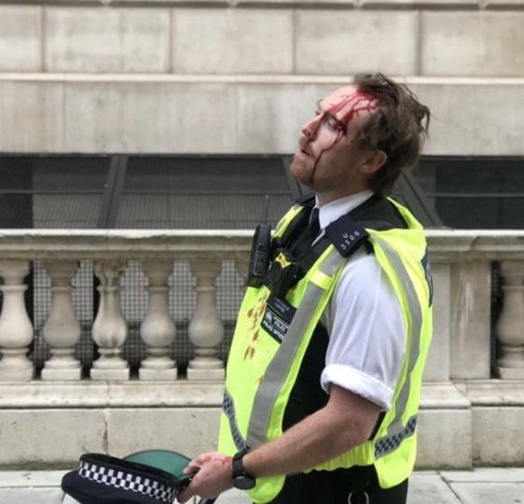 런던에서 시위대가 던진 돌 등에 맞아 피를 흘리는 영국 경찰. 트위터 캡처