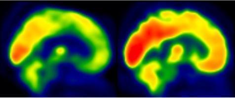 운동의 치매 예방 효과, 효소 단백질 하나가 좌우한다