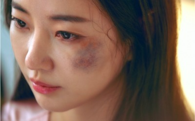 김사랑, '멍 투성이' 충격적인 얼굴…무슨 일?