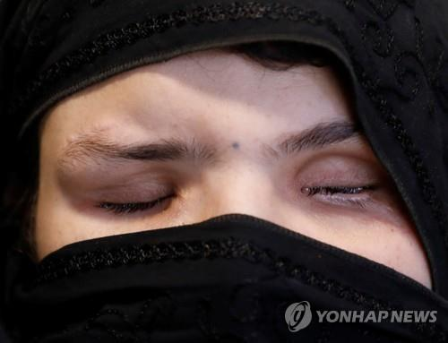 아프간 여성, 취직했다고 두 눈 흉기찔려 실명
