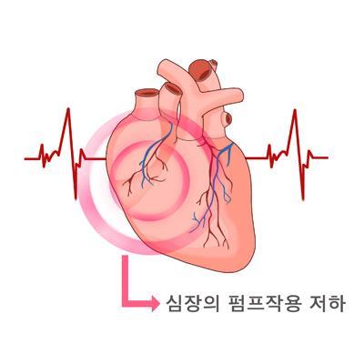 """""""당뇨약 엠파글리플로진, 심부전 치료에 상당한 효과"""""""