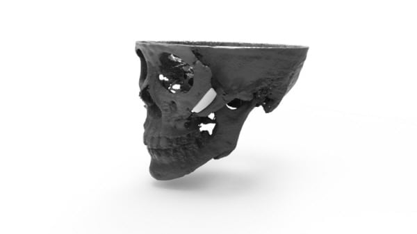 시지바이오. 3D 프린팅 독자 기술로 환자 맞춤형 얼굴 재건... 학술지 게재