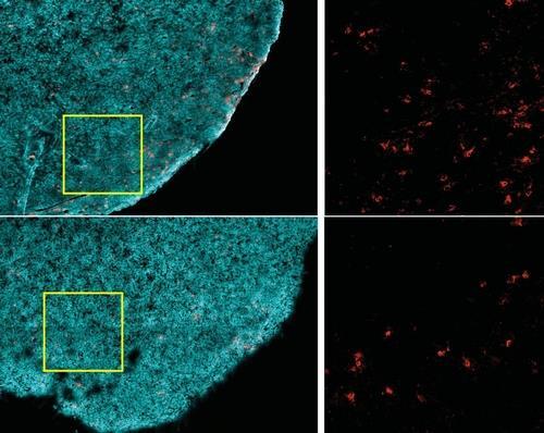 면역치료 후 '암 재발', 아예 싹 자르는 단백질 찾았다