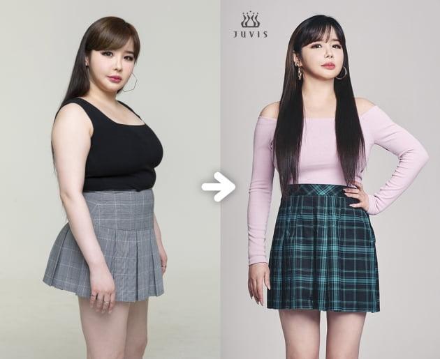 박봄, 다이어트로 11kg 감량 /사진=쥬비스 제공