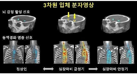 대뇌 감정활성도는 심근경색의 중증도가 높을수록 뚜렷하게 증가하고 심근경색이 회복됨에 따라 함께 감소하는 것으로 나타났다. [자료=고대구로병원 제공]
