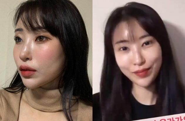 이세영 쌍꺼풀 수술 전후 /사진=인스타그램