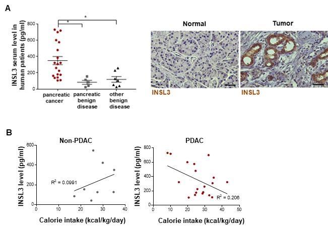 암 환자 생존율 떨어뜨리는 섭식 장애 원인 단백질 찾았다