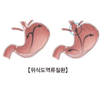 """""""위식도역류, 식도암·후두암과 연관"""""""