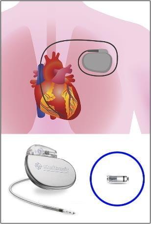 서울대병원, 부정맥 환자에 `무선` 심박동기 삽입술 첫 성공