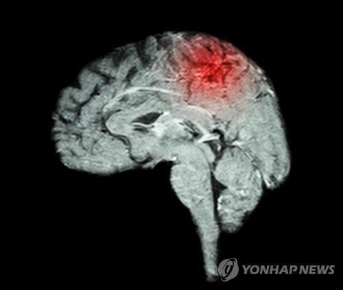 """""""뇌졸중 생존자 3분의 1, 우울증 겪어"""""""