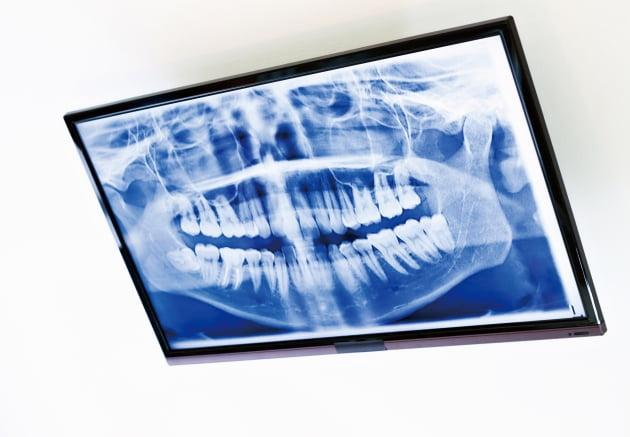 치과에서 찍는 방사선 사진 안전할까