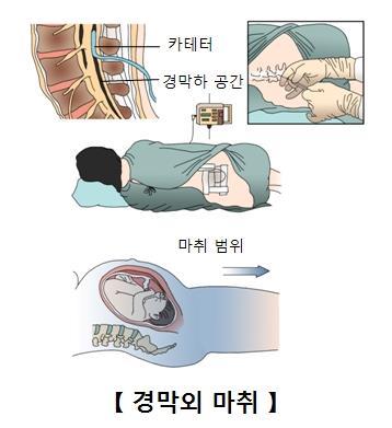"""""""출산 때 경막외 마취, 자녀 자폐증 위험과 무관"""""""