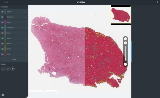 뷰노, 간암 환자 생존율과 연관성 높은 인자 확인