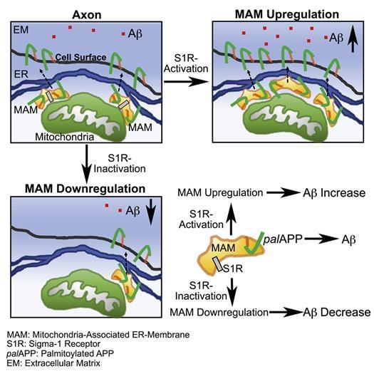 알츠하이머도 미토콘드리아 질환? 원인 단백질 연관성 발견