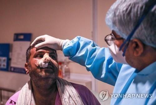 오만도 `털곰팡이` 공포…코로나 환자 3명 감염