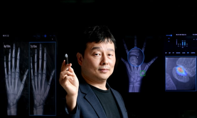 [고려대 세종산학협력단 N&UP 프로그램 스타트업 CEO] 손뼈 엑스레이 영상으로 골 연령 측정하는 크레스콤