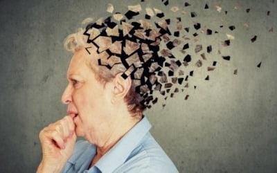 """코로나 감염 후 회복…""""나 혹시 알츠하이머?"""""""