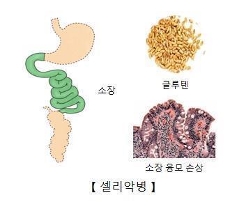셀리악병 최초 치료제 개발