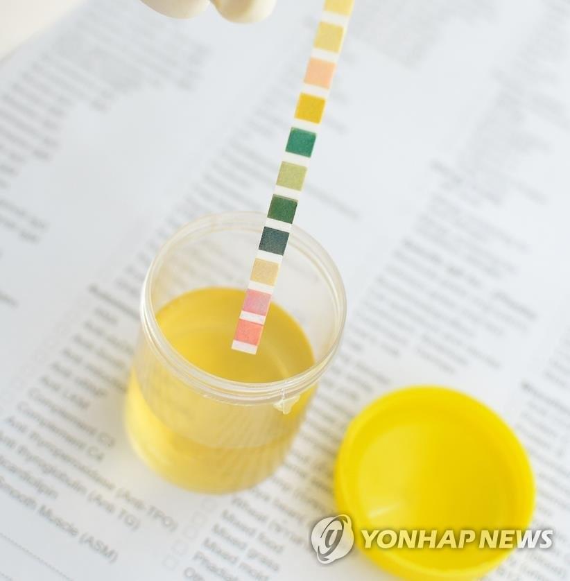 탁하고 냄새나는 소변, 방광염 의심해야…방치하면 신장염 된다