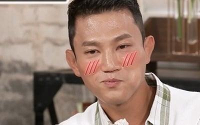 """조준호, 시술 고백 """"얼굴 돌려깎은 구본길 존경"""""""